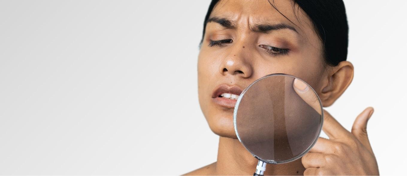 21 Cara Menghilangkan Flek Hitam Di Wajah Secara Alami